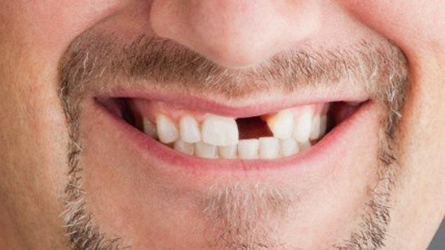 Que significa so ar que se te caen los dientes for Suelo que se me caen los dientes